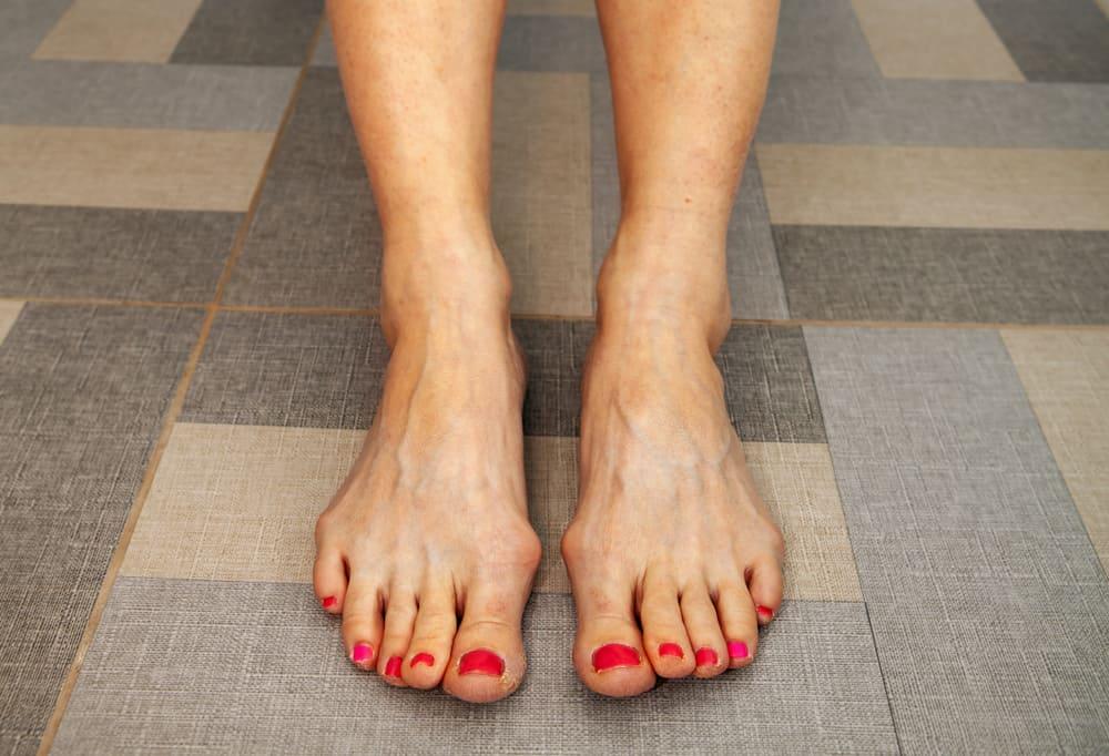 Vene na nogama prirodno liječenje